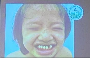 Bé gái mắc hội chứng 'con báo' đầu tiên ở Việt Nam