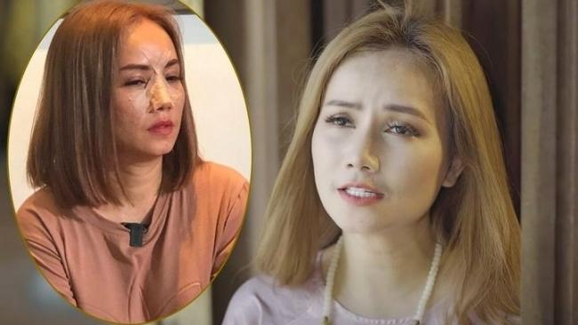 Hậu bị chồng cũ đánh gãy mũi, Hoàng Yến nói gì khi bị anti-fan mỉa mai: Lấy 20 người nữa cũng được?