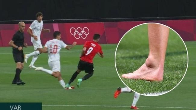 Cầu thủ Tây Ban Nha chấn thương kinh hoàng, cổ chân bị bẻ gập